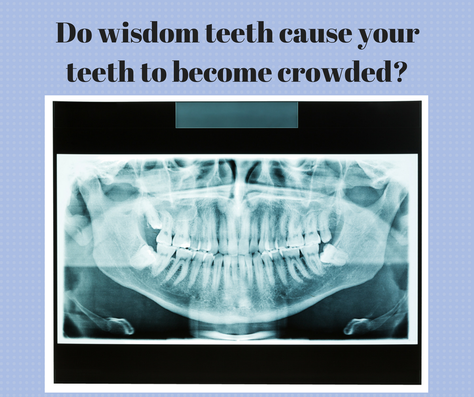 do-wisdom-teeth-cause-your-teeth-to-become-crowded-copy.png