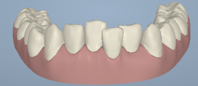 lower-front-teeth-crowding-01a.png