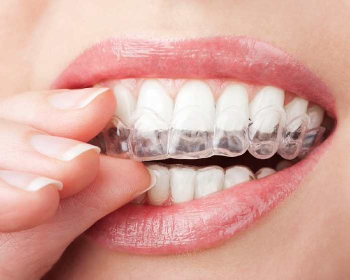 invisalign-insurance.png