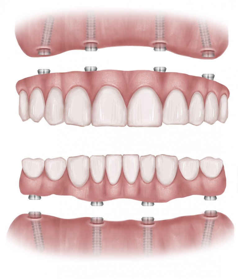 all-on-4-dental-implants-kent.jpg