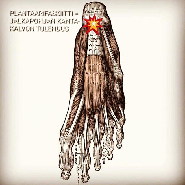 """Plantaarifaskiitin eli jalkapohjan jännekalvon tulehduksen on arvioitu vaivaavan jopa 10%  väestöstä jossain elämänvaiheessa. Kipu ilmaantuu jalkapohjaan kantapään etupuolelle.  Voimakkaimpana kipu yleensä tuntuu nukkumisen jälkeen ensimmäisillä askelilla. 🔴 Plantaariafascian eli jalkapohjan jännekalvon tehtävä on toimia iskunvaimentimena, sekä siirtää, esimerkiksi juoksussa, elastista liike-energiaa. Jos rasitus kasvaa liian suureksi, fasciaan voi syntyä  pieniä repeämiä, jotka aiheuttavat tulehduksen. 🔴  Altistavia tekijöitä plantaarifaskian syntymiseen voivat olla muun muassa jäykkä nilkka ja  jalkaterä, yliliikkuvat nivelet, """"lättäjalka"""", epänormaali askellus, vääränlaiset kengät, paikaillaan oleva elämäntyyli, ylirasitustila ja liian vähäinen palautuminen. Plantaarifaskiitin huomiotta jättäminen voi johtaa krooniseen kantapääkipuun. Kävelytyylin  muuttaminen kivun takia voi johtaa polvi-, lonkka-, ja selkäkipuihin. 🔴 Kivun ennaltaehkäisemiseksi on tärkeää ylläpitää normaalia jalkaterän ja nilkan liikettä ja liikkuvuutta, sekä valita oikeanlaiset kengät, jotka eivät  purista jalkaterää ja sallivat jalkapohjan lihasten normaalin toiminnan."""