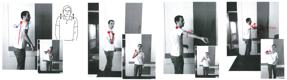 The four main maladaptive positions that stroke patients adopt (From left to right, shoulder shrug, flexion synergy pattern, inner rotation/extensor synergy pattern, wrist drop).