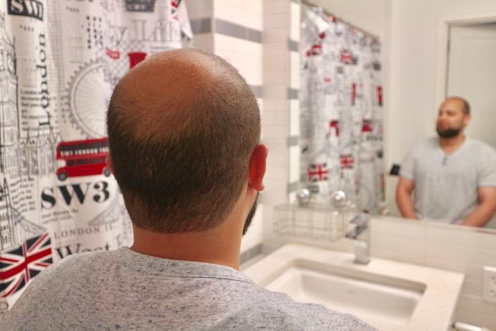 bald men