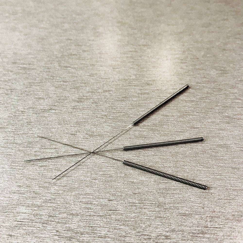 How does acupuncture work wild earth acupuncture portland oregon around forty of these needles can fit into one hypodermic needle solutioingenieria