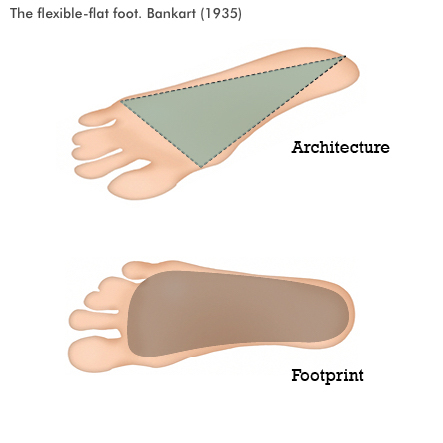 flexible-flat-foot.jpg