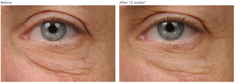 Minimizes the appearance of dark circles