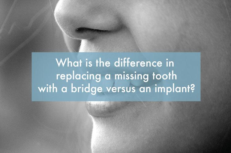 replacing-missing-tooth-mesa-arizona.jpg