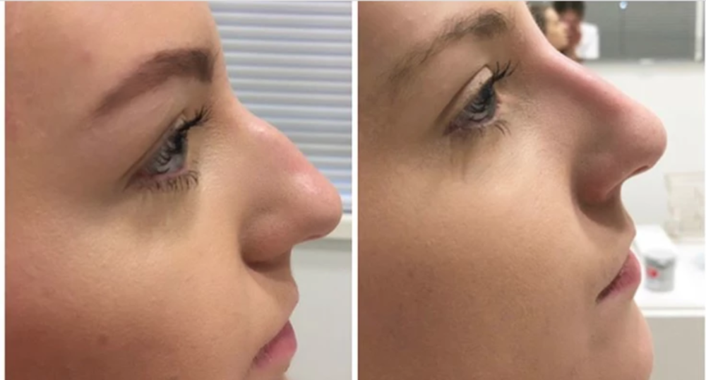 Non surgical rhinoplasty results