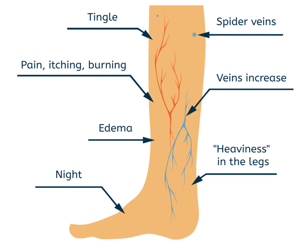 Poor circulation in the legs can cause varicose veins. Blood moves through a healthy vein in only one direction, and a healthy vein does not push or bulge against the skin. As a vein becomes weakened by time and constant pressure, it can start allowing some blood to flow backward. Without treatment varicose veins will worsen over time.    Poor circulation can also cause swollen ankles. Like varicose veins, swollen ankles get worse over the course of the day. Without treatment swollen ankles can worsen until the trapped fluid inside begins to leak out through the skin. This is called an ulcer. Ulcers are painful and leave you vulnerable to bacterial infection.    Spider veins are similar to varicose veins and have the same causes and treatments. Spider veins are smaller and redder than varicose veins. Usually, they appear in patches on the thighs or ankles, although some people will see them first on their nose and cheeks. Treating spider veins is very similar to modern varicose vein treatments.    Varicose veins become more numerous and visible over time. Some people develop itchy or painful varicose veins. Sometimes other, related symptoms also appear, like leg swelling or a feeling of heaviness in the leg.    Varicose Veins are usually a cosmetic concern, but could be a sign that you are more susceptible to other circulatory problems. Some people that exercise experience pain or discomfort, which is not life-threatening but can be very unpleasant and usually worsen after standing or sitting for long periods of time. These physical symptoms occur near the affected veins and can include:  Aches  Feeling of heaviness  Itching  Bleeding not due to injury    Some physical symptoms are indicative of a serious issue. Alert your doctor right away if you experience:  Color changes in your skin  The vein becoming hard  Inflammation of the skin around your ankles, or skin ulcers near your ankle