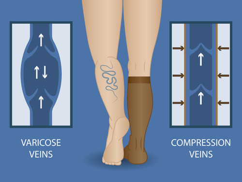 best-varicose-veins-treatment-brooklyn-compression-stockings.png