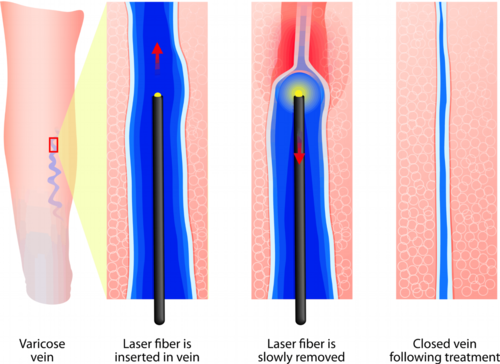 laser-ablation-specialist-brooklyn.png