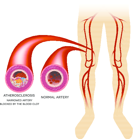 peripheral-artery-disease-treatment-specialist-in-Brooklyn.png
