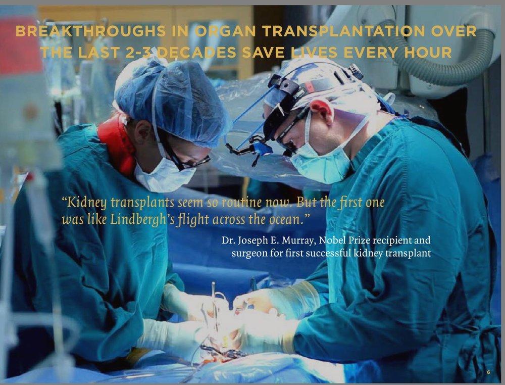 Transplanting Organs
