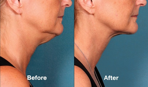 kybella-before-after-01.jpeg