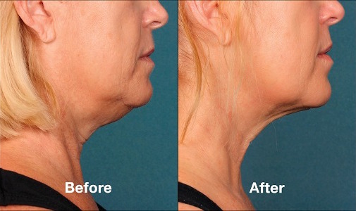 kybella-before-after-02.jpeg