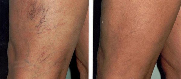 leg-vein-therapy-before-after.jpeg