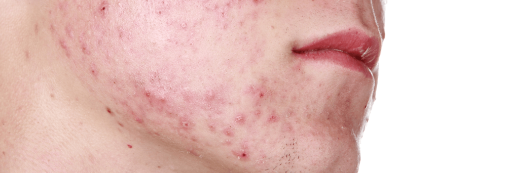 acne consultations.png