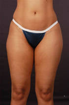 p-lipo-before-front.jpg