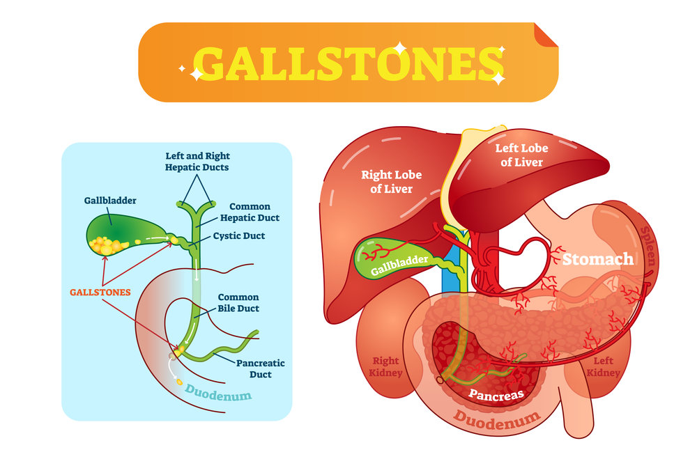Gallstones And The Need To Consult A Gastroenterologist Immediately