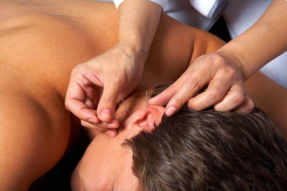 oor-acupunctuur.jpg