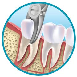 extraccion-dental.png