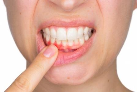 sintomas-comunes-de-la-periodontiti.jpg