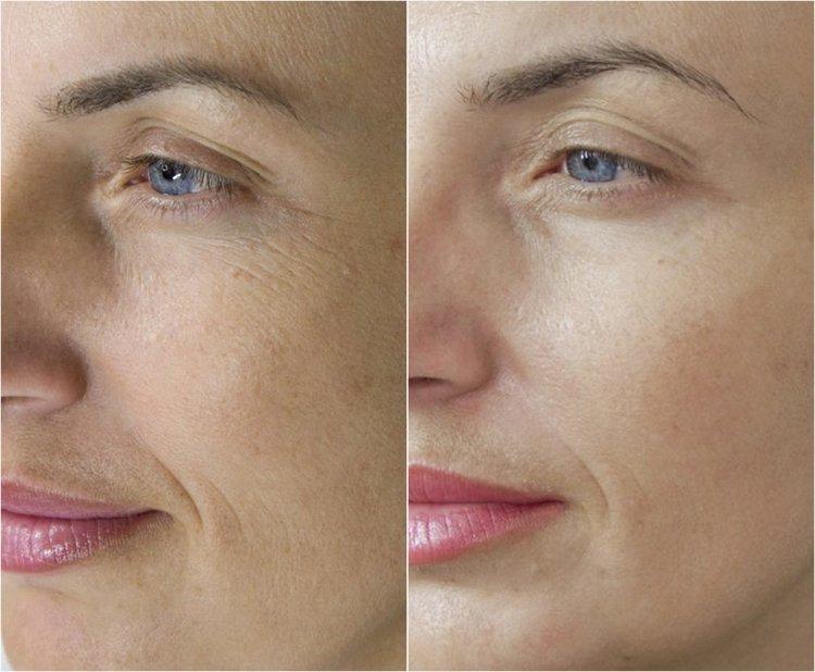 naso labial lines.jpg