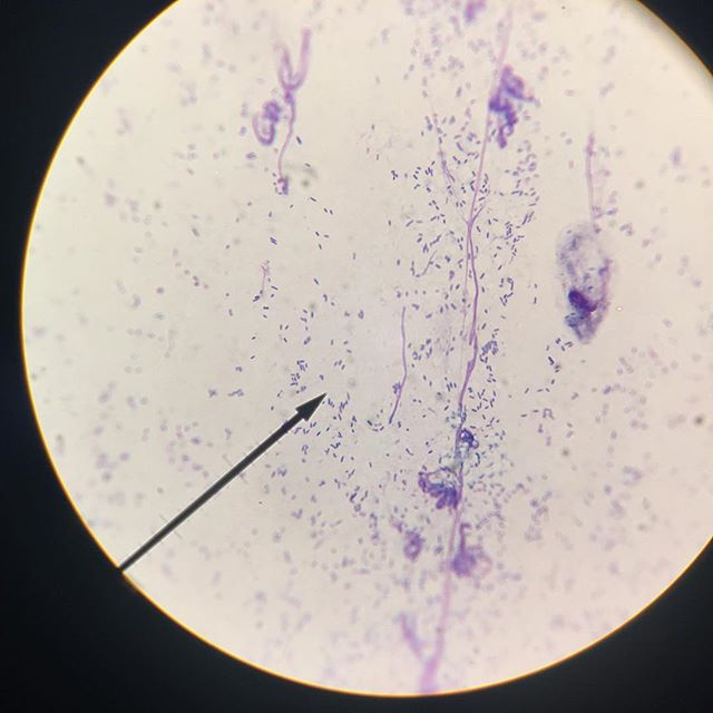 """Ever wonder why Dr. Liska takes a swab of your pet's itchy ear?  Itchy ears, along with redness and pain, can be a sign of an ear infection. By examining a swab under the microscope, Dr. Liska can see what kind of infection is present (i.e. Bacteria or Yeast) and determine the best course of treatment.  This ear cytology photo was taken by one of our technicians and shows a bacterial infection. Dr. Liska and the technicians look for """"rods"""" (of which there are many on this slide - they look like little tic tacs), cocci (dot-shaped bacteria), or yeast (snowman-shaped or """"budding"""")."""
