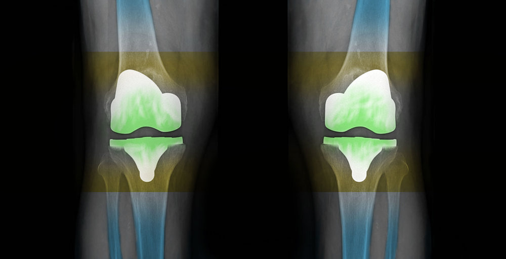 In 80–90%of cases we are satisfied with the results of the artificial knee-joint -