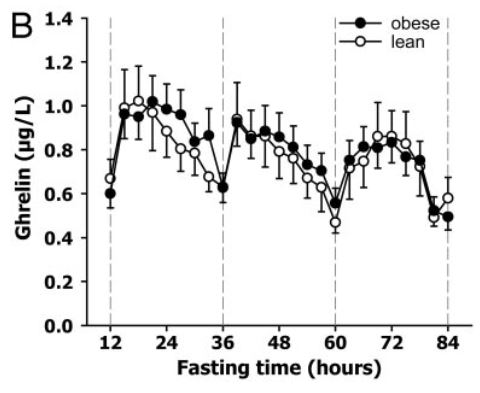 Ghrelin levels decrease while 84 fast in obese and lean people_Espelund2.JPG