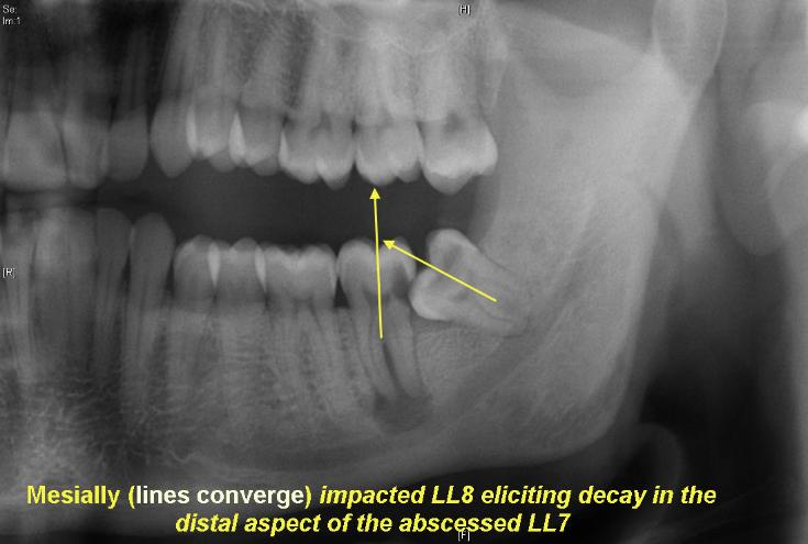 Mesially_impacted_LL8_eliciting_decay_in_LL72-735x495.jpg
