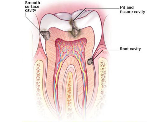 diagram-showing-progression-of-tooth-decay.jpg