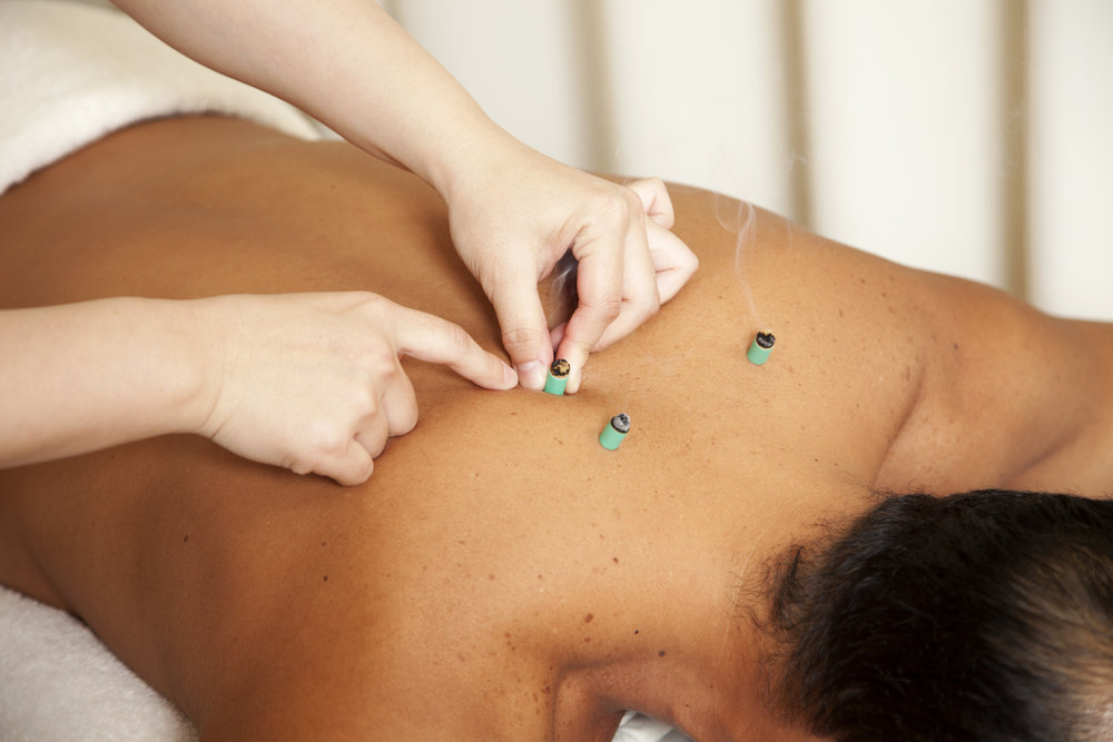 moxibustion-therapy-cyprus.jpg