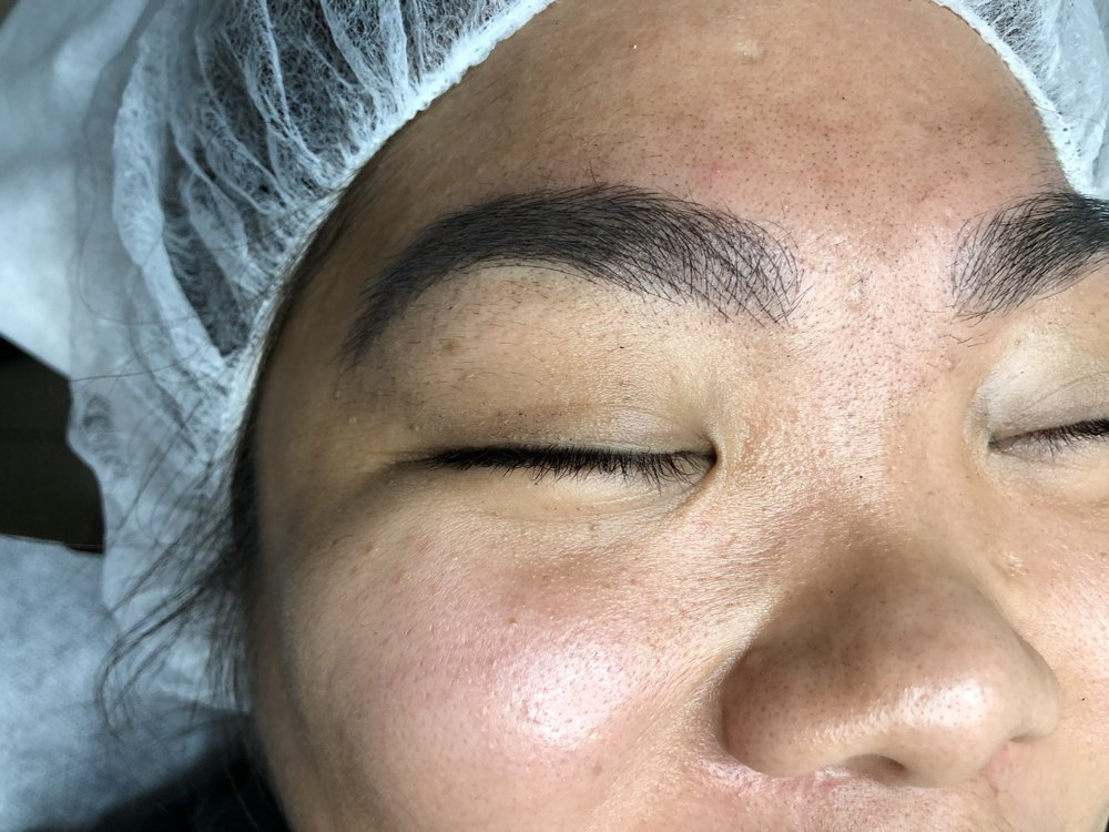 Microblading: Right after procedure