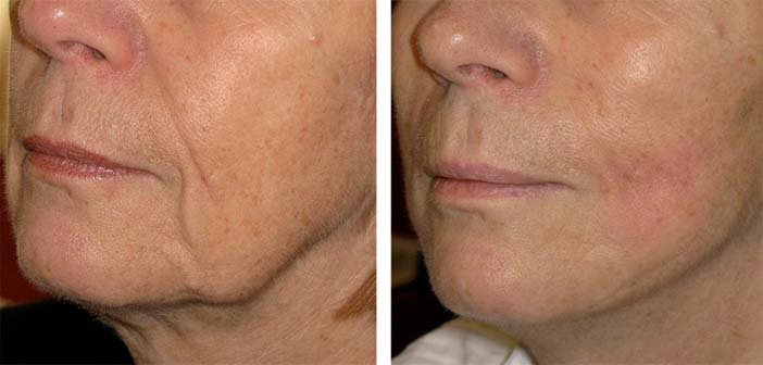 Ultherapy 02.jpg