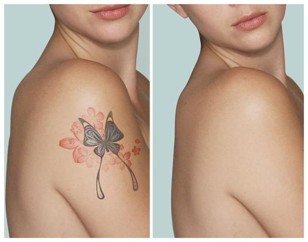 Tattoo Gone.jpg