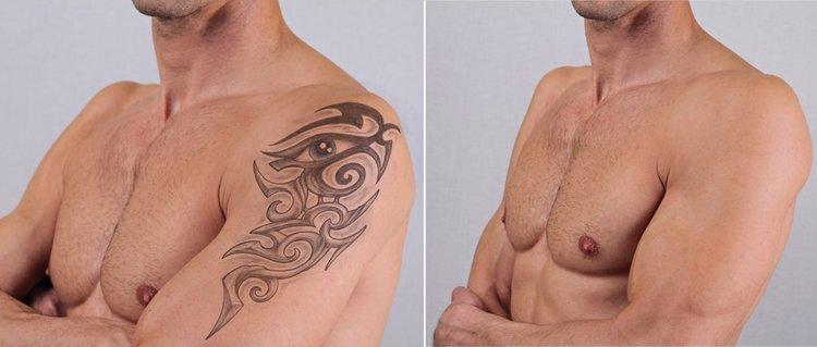 Tattoo-Removal-man.jpg