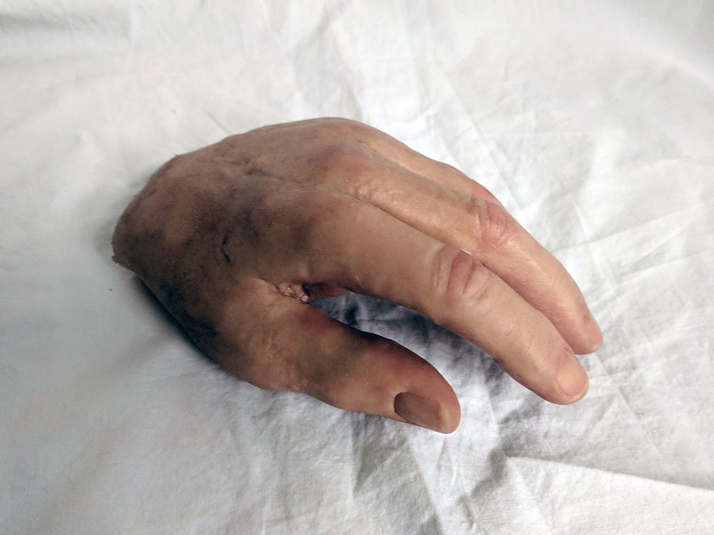 Prosthetic hand - A hand prosthesis with realistic skin tone and fingernails. The hand and the prosthetic leg were made in the 1970's but failed inspection for use so were due to be discarded.