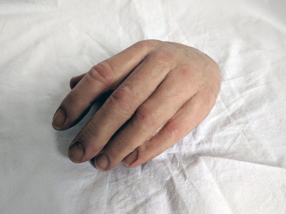 Prosthetic hand (1).jpg