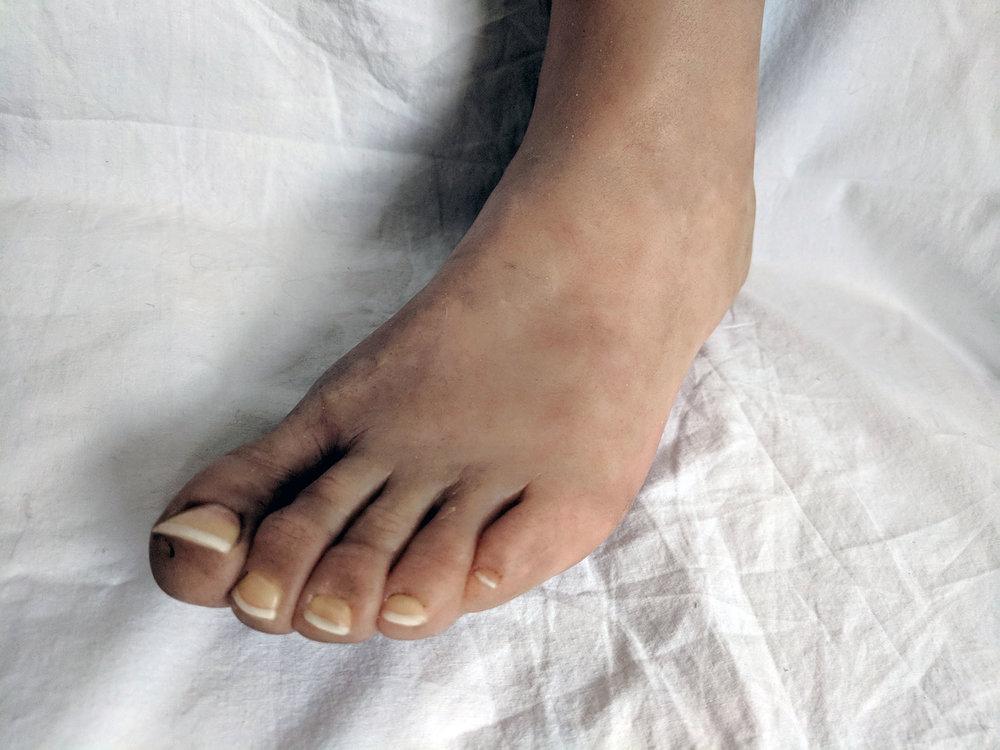 Prosthetic leg (3).jpg