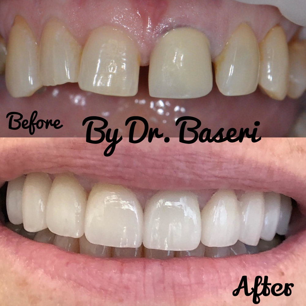 Smile Makeover completed by Veneers and Crowns combinations. Full video on Instagram Page.