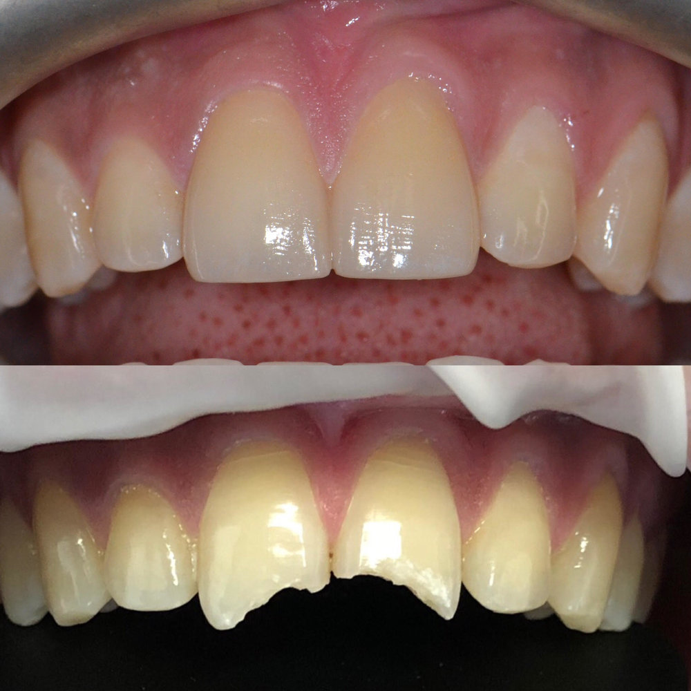 Fractured two front teeth restored to its normal shape with Porcelain Crown.
