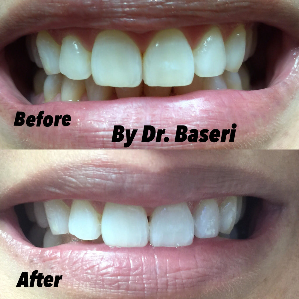 teeth-whitening-example.jpg