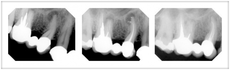 ROOT-CANAL-784x350.png