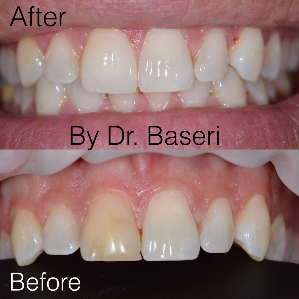 Changing discolored tooth with porcelain veneer