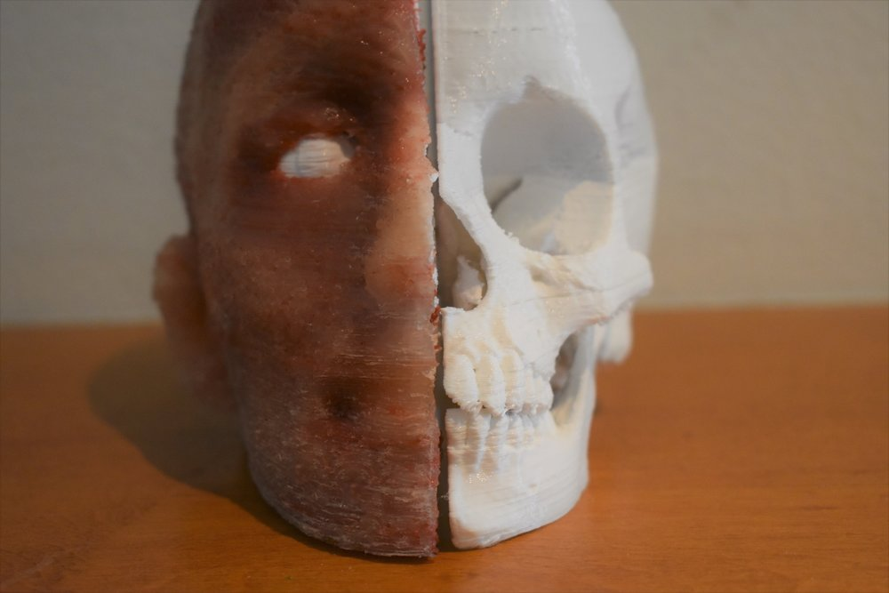 3D Printed synthetic skull based of a MRI scan