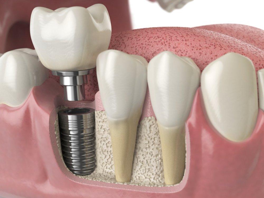 anatomy-of-healthy-teeth-and-tooth-dental-implant-in-human-denturra-picture-id886031480.jpg