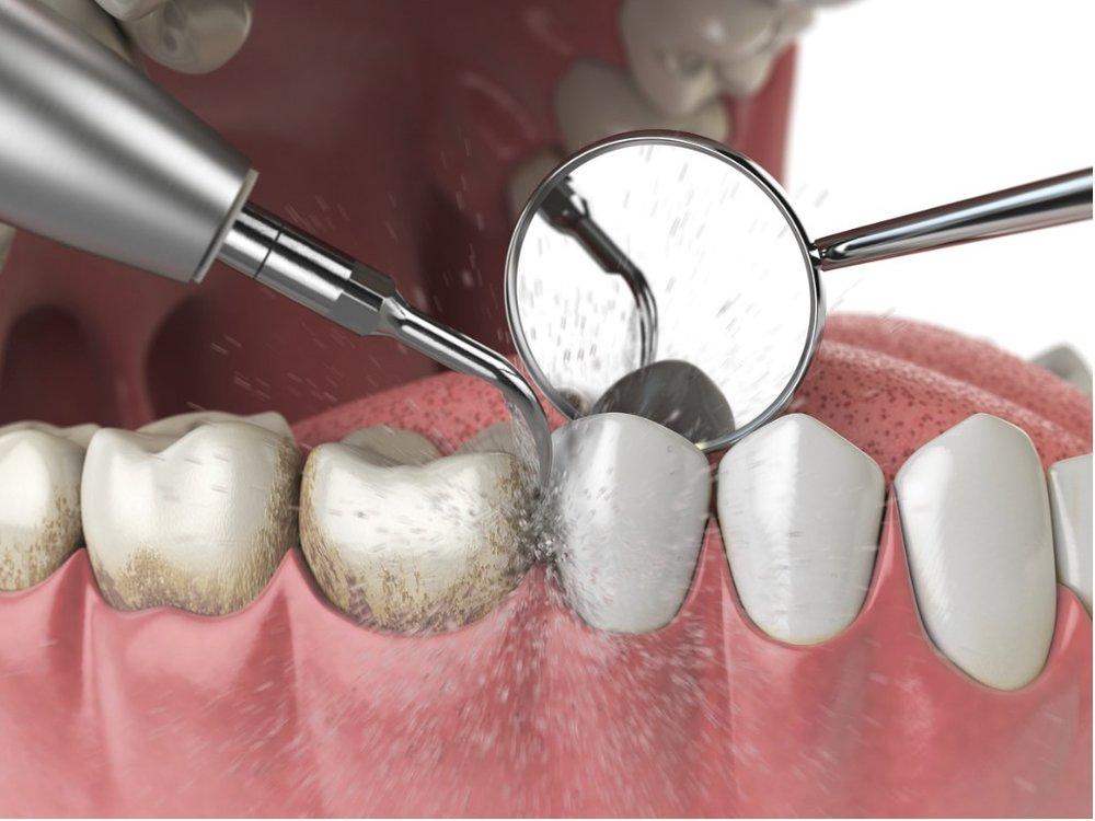 professional-teeth-cleaning-ultrasonic-teeth-cleaning-machine-delete-picture-id1029340434 (1).jpg