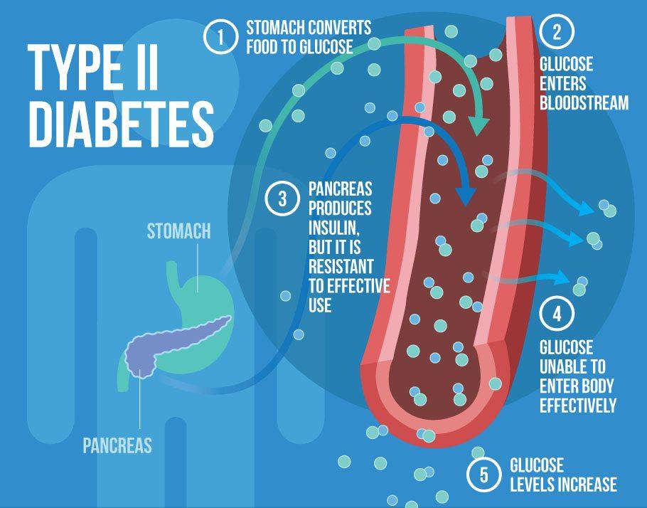 type-2-diabetes.jpg