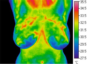 Thermogram: Estrogen Dominance before Treatment